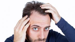 Saç Dökülmesine Çözüm