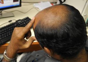 saç neden dökülür